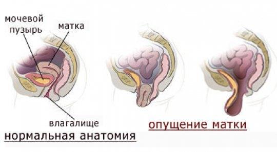 опущение матки1(1)
