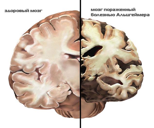 1432653078_sravnenie-zdorovogo-i-porazhennogo-boleznyu-mozga