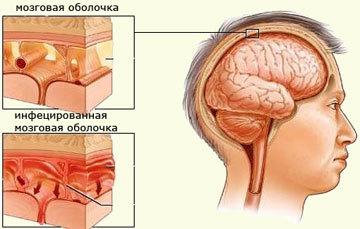 Поражение оболочки головного мозга
