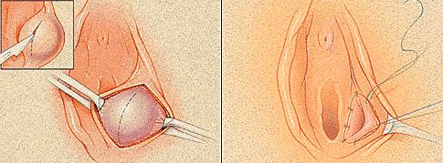 Хирургическое удаление бартолинита