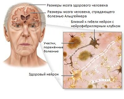 alzheimers_disease2_74165944_std