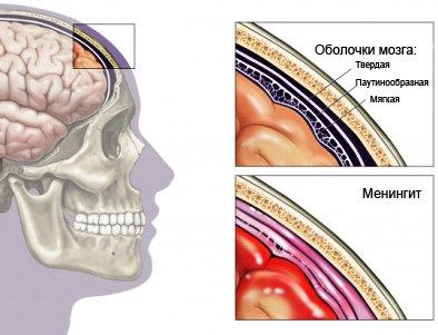 bakterialnyj-meningit
