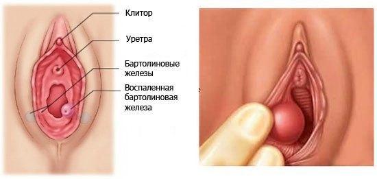 bartolinit (1)