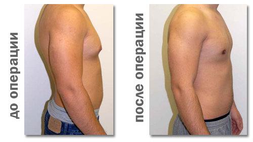 Результат операции при гинекомастии