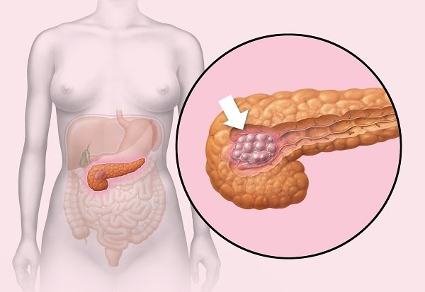 Инсулинома