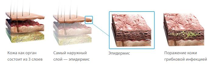 проявление паразитов организме человека