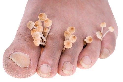 Грибок стопы: причины, проявление, лечение