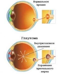 glaukoma-2