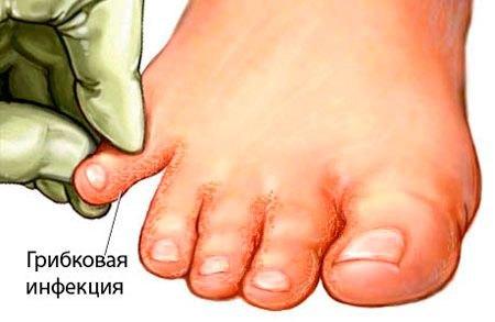 gribok-simptomy-2