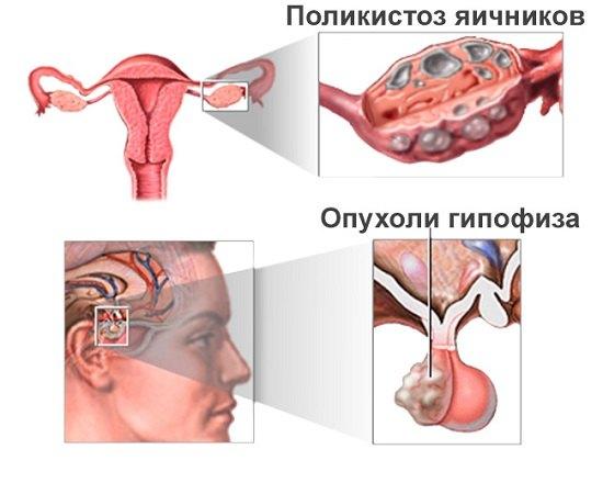 Увеличены яичники как лечить народными средствами
