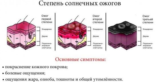 3.3_kak_i_chem_lechit_solnechnye_ozhogi