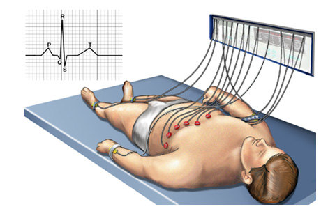 Электрокардиограмма сердца: подготовка, показания, расшифровка
