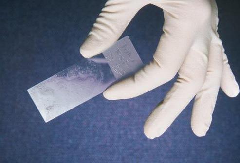 Бактериоскопия расшифровка мазка норма и возможные заболевания