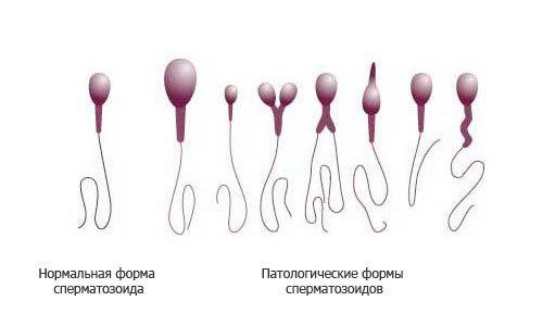 Normalnye-i-patologicheskie-formy-spermatozoidov-500x300