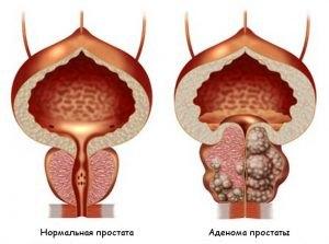 adenoma(5)