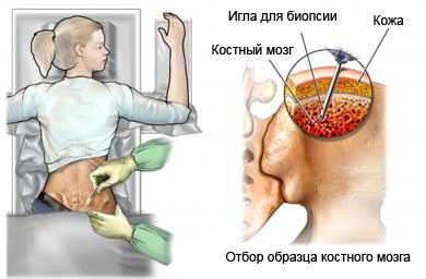 bone-marrow-biopsy-1