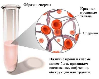 Приапизм  причины симптомы диагностика и лечение