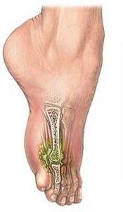 osteomielit-lechenie