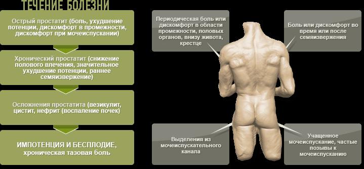 средства от простатита у мужчин аптечные