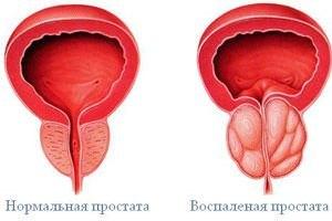 prostatit985894395