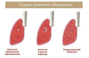 stadii-razvitia-tuberkuleza-acmd-clinic
