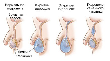 vodyanka-yaichka-gidrocele-priznaki