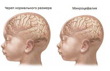 Mikrocefaliya1