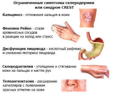 Scleroderma_CREST