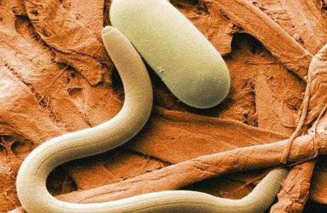 enterobioz