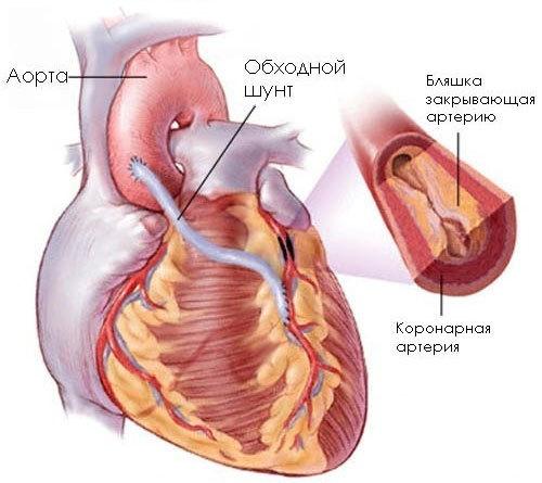 kardioskleroz-3