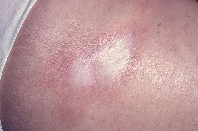 ochagovaja-sklerodermija-lechenie-foto-simptomy-posledstvija