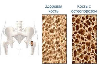 osteoporosis_01