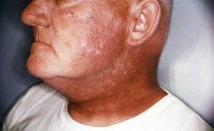 simptomy-luchevoy-bolezni