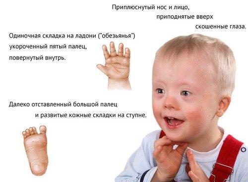 simptomy-sindroma-dauna