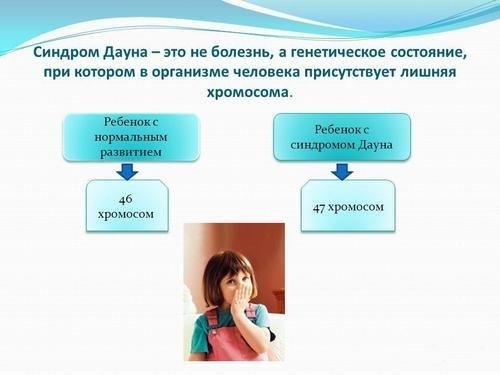 sindrom-dauna-3