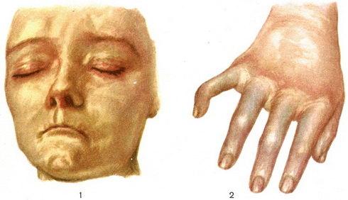 sklerodermiya-sistemnaya
