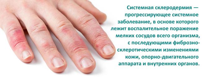 sklerodermiya