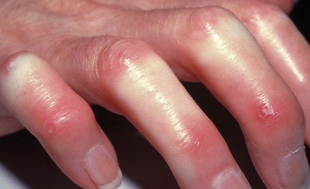 systemic_scleroderma