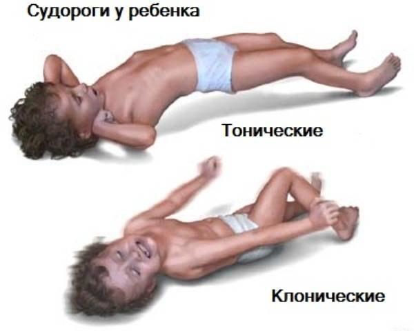 Судороги-у-детей
