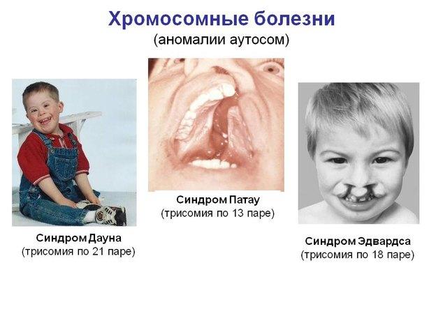 0008-008-khromosomnye-bolezni-anomalii-autosom