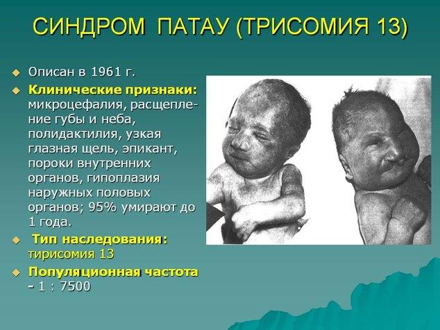 0051-051-sindrom-patau