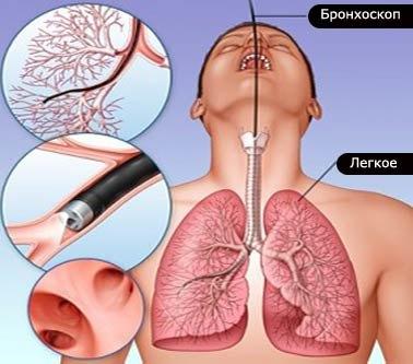 broncoscopia-1