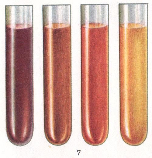 haemoglobinuria107