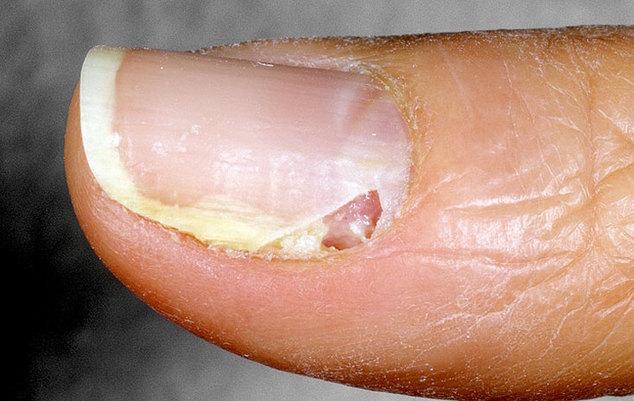 acute-paronychia-16-a-foto
