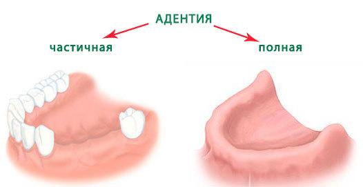 adentija-vrozhdennoe-otsutstvie-zuba-2