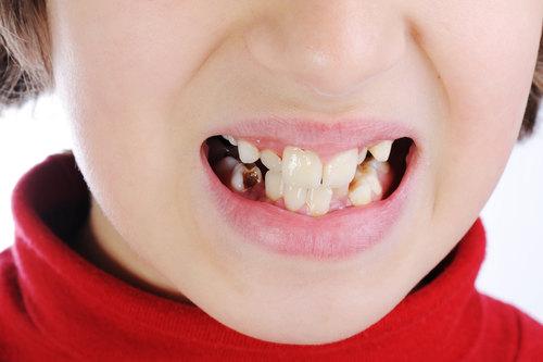 adentija-vrozhdennoe-otsutstvie-zuba-3