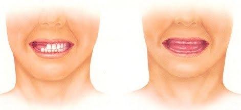 adentija-vrozhdennoe-otsutstvie-zuba