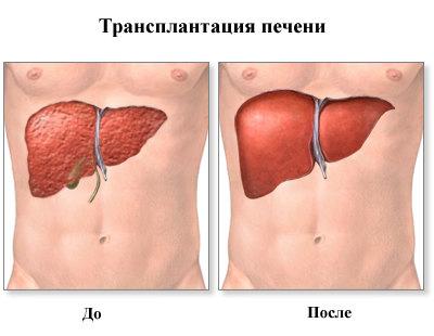 liver-t1