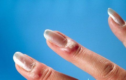 Acute paronychia on fingers