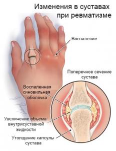 revmatizm-1